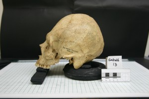 Forensic Anthropology 2